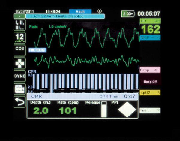 2017/08/X_Serie-Display-EMS_CPR_HR.jpg